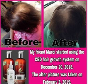 CTFO Hair Growth Before After Pics