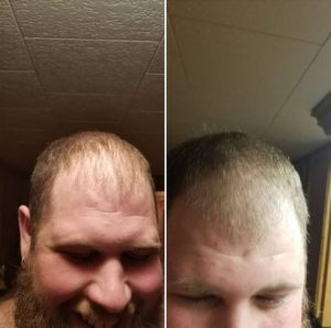 Hair Growth with CTFO Before After Pic Isaiah