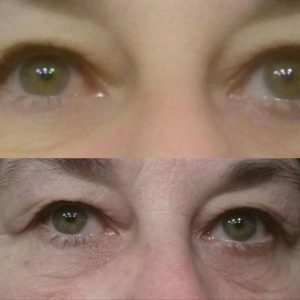 Under Eye Cream by CTFO Before After Pic