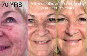 CTFO Skin Care Testimonial