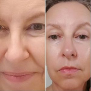 Dermavie before-after picture